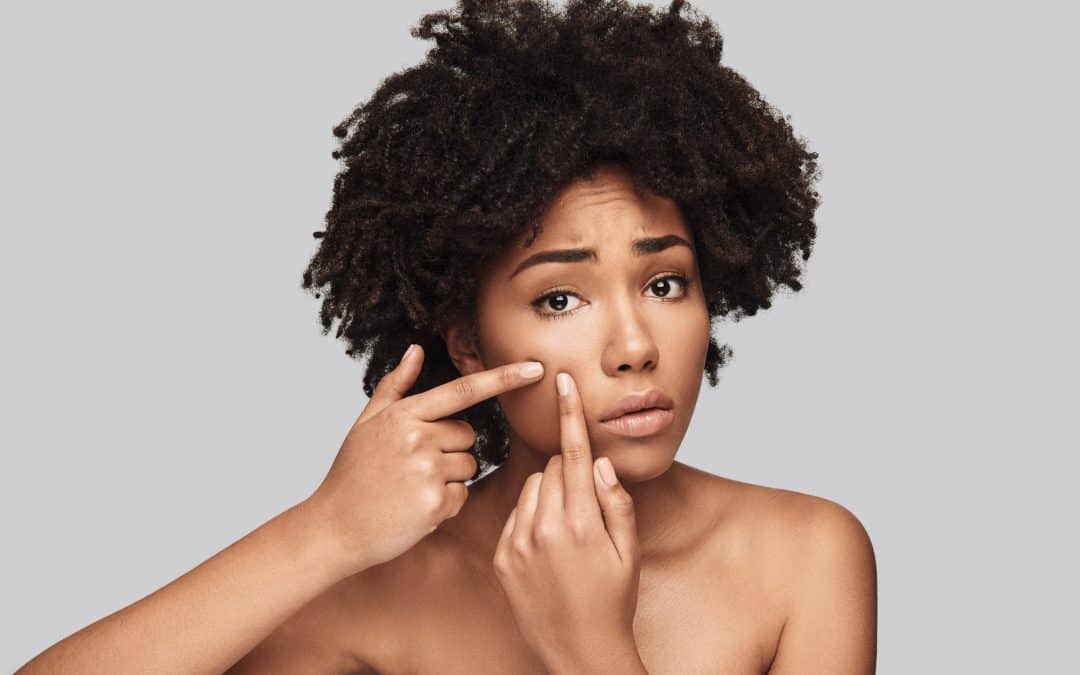 The Truth About Hormonal Acne