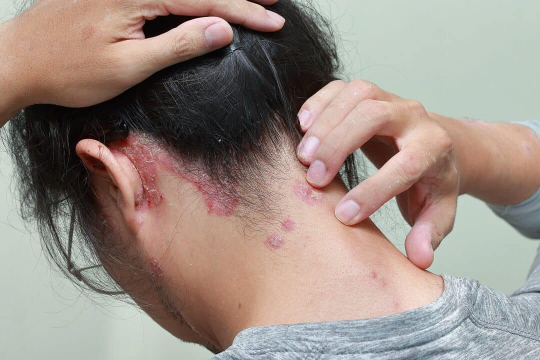 Scalp Psoriasis Study